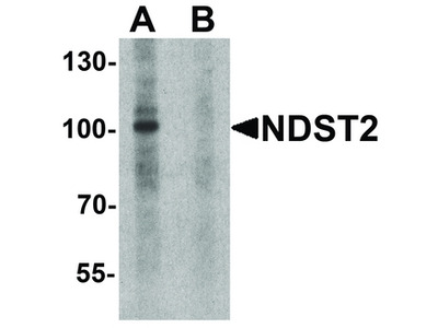 NDST2 Polyclonal Antibody