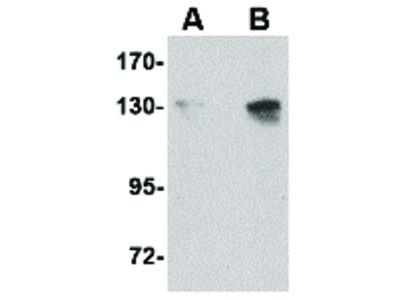 NUP155 Antibody