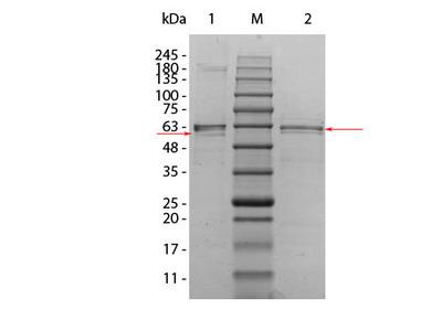 AKT2 Human Recombinant Protein