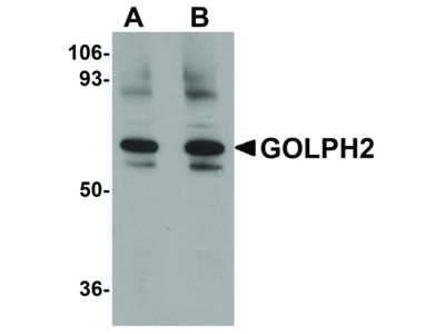 GOLPH2 Antibody