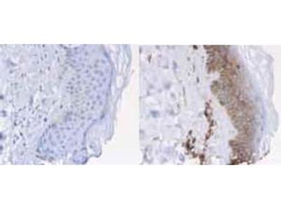 Beta-2-Microglobulin Antibody Peroxidase Conjugated