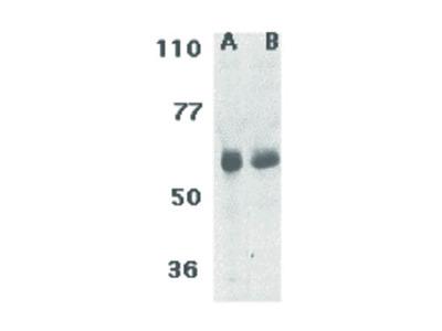 CIKS Antibody