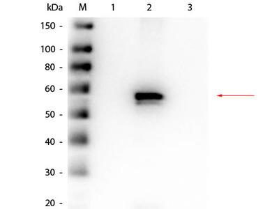 AKT2 Antibody Combo Pack