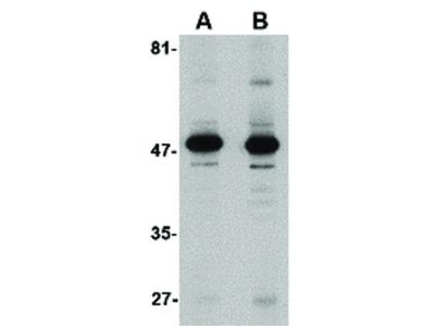 Aldh3A1 Antibody