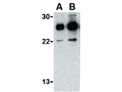 RPA Interacting Protein Antibody