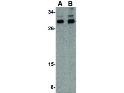 NIPSNAP3B Antibody
