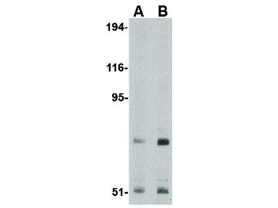 TNPO3 Antibody