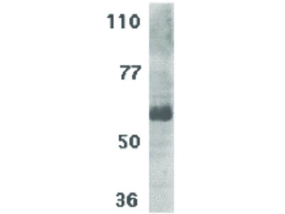 IL-21 Receptor Antibody
