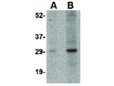 NIPSNAP2 Antibody