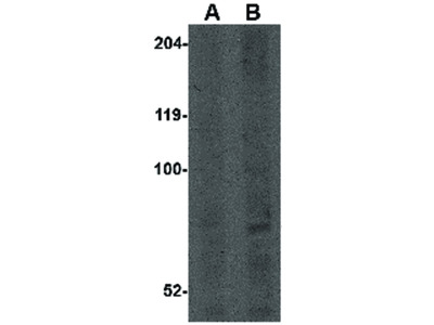 CNOT4 Antibody
