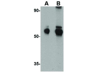 ALDH5A1 Antibody