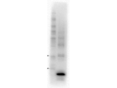 Procalcitonin (4F2.D9.C5.G5.B2.C5) Antibody