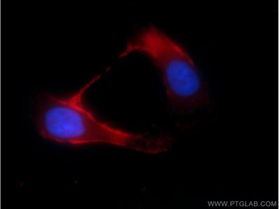 TRPM8 antibody