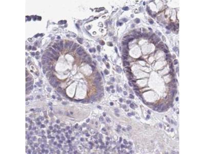 PLCD4 Antibody