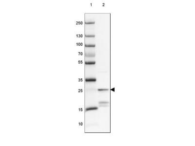 Protein Phosphatase inhibitor 1 Antibody