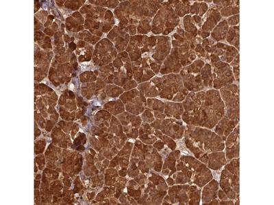 Pancreatic Lipase Antibody