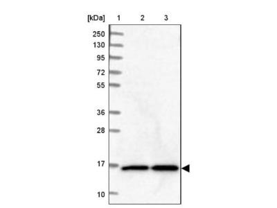 NUDCD2 Antibody