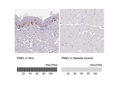 PMEL17 / SILV Antibody
