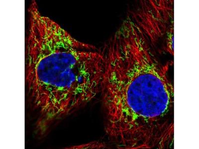 GBAS Antibody