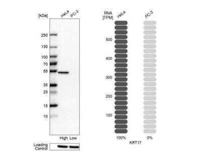 Cytokeratin 17 Antibody