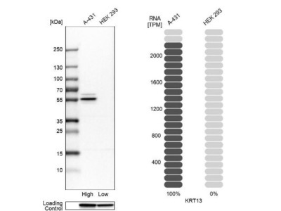 Cytokeratin 13 Antibody