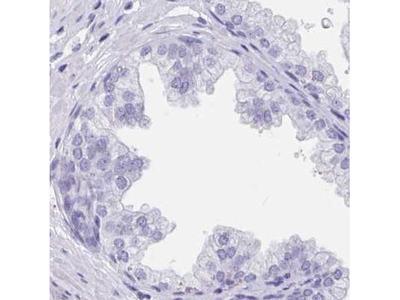 Troponin C (cardiac) Antibody