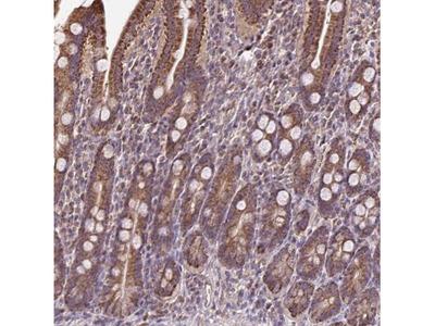 alpha 1 Mannosidase 1A Antibody