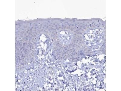 CPI17 alpha Antibody