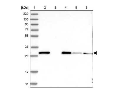 EEF1B2 Antibody