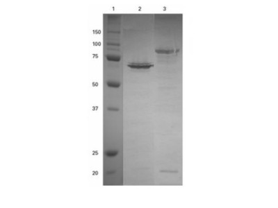 Rabbit Polyclonal SNAP tag Antibody