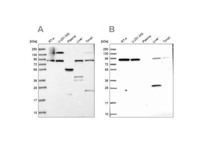 QARS Antibody
