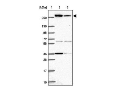 Acetyl-CoA Carboxylase alpha / ACACA Antibody
