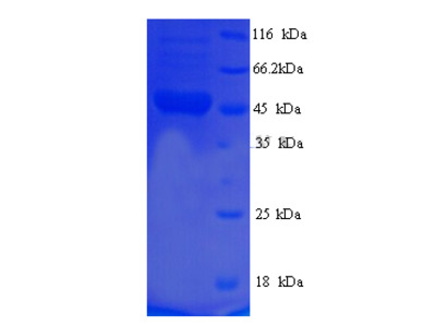 Recombinant Human respiratory syncytial virus B Fusion glycoprotein F0 (F)
