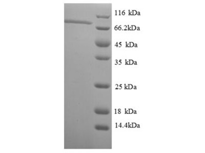 Recombinant thermus aquacicus DNA polymerase I, thermostable
