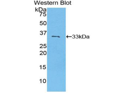 Polyclonal Antibody to Purinergic Receptor P2Y, G Protein Coupled 14 (P2RY14)