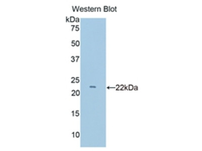 Polyclonal Antibody to Lymphocyte Function Associated Antigen 2 (LFA2)