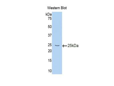 Polyclonal Antibody to Interleukin 10 Receptor Beta (IL10Rb)