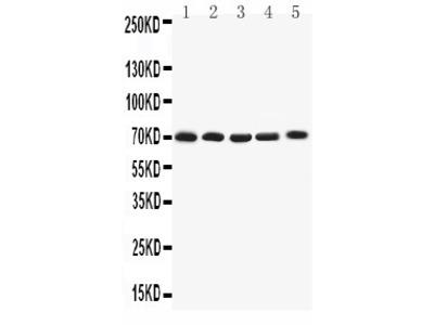 Anti-Kv1.4 antibody