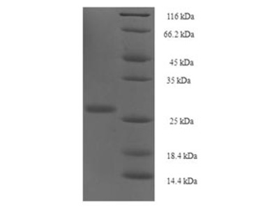 Recombinant Human Protein yippee-like 1 (YPEL1)