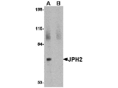 JPH2 Peptide