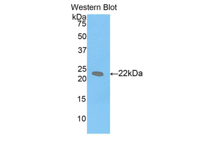 Polyclonal Antibody to Leukemia Inhibitory Factor (LIF)
