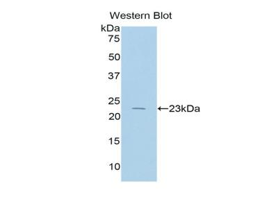 Polyclonal Antibody to Interleukin 17 Receptor B (IL17RB)