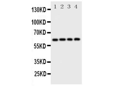 Anti-SQSTM1/p62 antibody