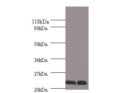 Rabbit anti-human Chorionic somatomammotropin hormone polyclonal Antibody