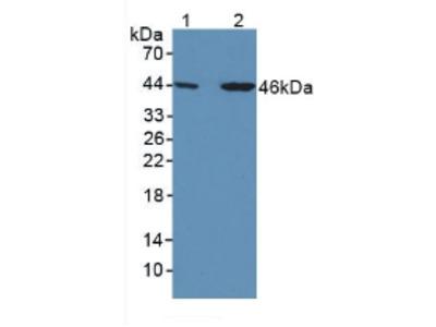 Polyclonal Antibody to Thyroxine Binding Globulin (TBG)