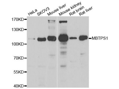 MBTPS1 Polyclonal Antibody