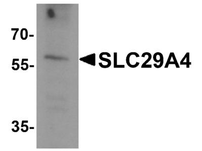 SLC29A4 Antibody