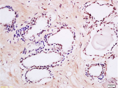 MAK (Tyr159) Antibody