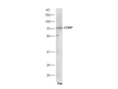 COMP Polyclonal Antibody, Biotin Conjugated