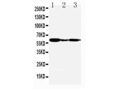 Anti-G-protein coupled receptor 30 antibody